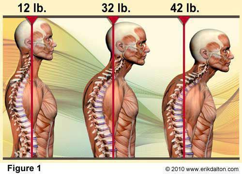 Effet du port antérieur de la tête
